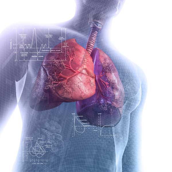 Community-Acquired Pneumonia - Lung and Airway Disorders
