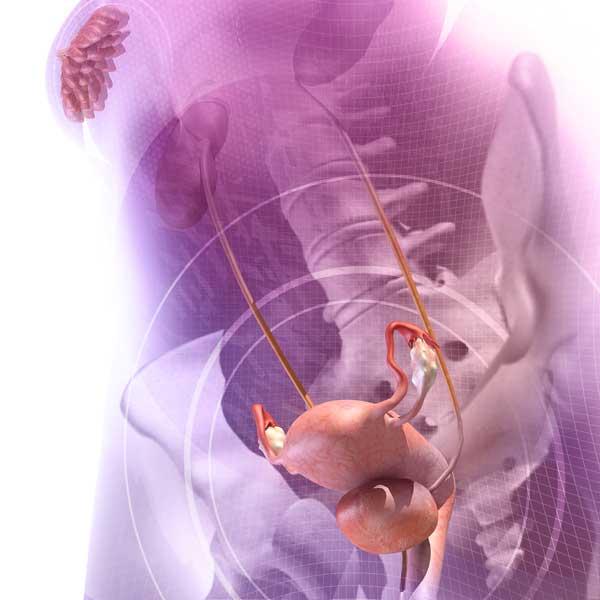infecciones en el utero dela mujer