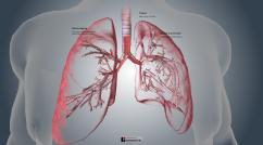 Cystic Fibrosis in the Lungs