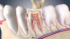 Inside the Tooth